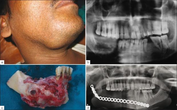 Tìm hiểu về u men xương hàm - căn bệnh khiến Long Chun phải tạm gác mọi công việc để tập trung chữa chạy - Ảnh 3.