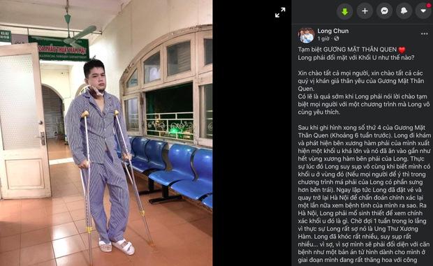 Tìm hiểu về u men xương hàm - căn bệnh khiến Long Chun phải tạm gác mọi công việc để tập trung chữa chạy - Ảnh 1.