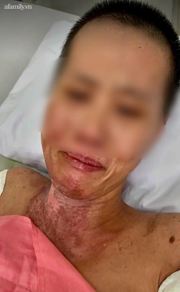 Kinh hoàng nghi án mẹ trẻ 2 con bị chồng tưới xăng đốt làm bỏng nặng đến 58% sau cơn cuồng ghen - Ảnh 2.