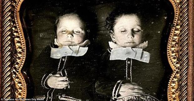 Những bức ảnh em bé nằm nhắm mắt trông vô cùng yên bình nhưng đằng sau đó là những câu chuyện rùng rợn không ai ngờ - Ảnh 5.