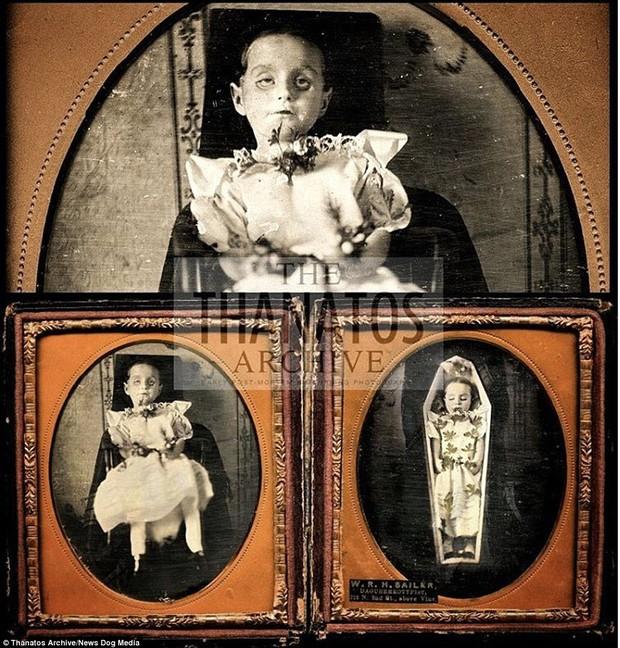 Những bức ảnh em bé nằm nhắm mắt trông vô cùng yên bình nhưng đằng sau đó là những câu chuyện rùng rợn không ai ngờ - Ảnh 12.