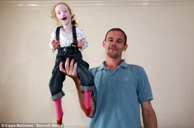 Bé gái chào đời chỉ nặng 30g, bác sĩ tuyên bố chỉ sống được 1 năm nhưng em đã chứng minh cho thế giới thấy phép màu là có thật! - Ảnh 4.