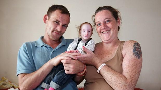Bé gái chào đời chỉ nặng 30g, bác sĩ tuyên bố chỉ sống được 1 năm nhưng em đã chứng minh cho thế giới thấy phép màu là có thật! - Ảnh 8.