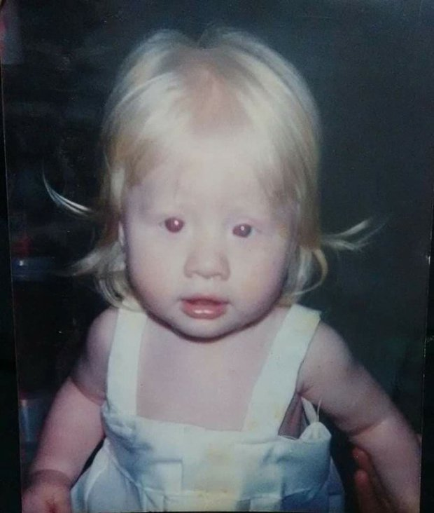 Từ nhỏ đã bị bạn bè trêu chọc kêu là quỷ ma, cô gái nuốt nước mắt vào tim rồi khiến ai cũng ngỡ ngàng với hình ảnh trưởng thành của mình - Ảnh 1.