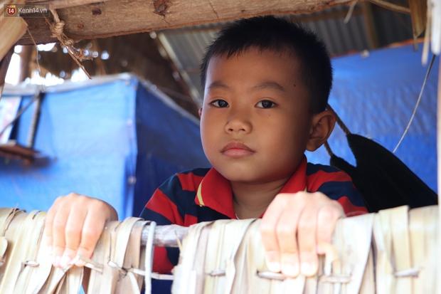 Lời khẩn cầu của bé trai 8 tuổi mắc bệnh lạ, phải cắt bỏ ruột: Mỗi lần chảy máu nó bắn ra ngoài, con sợ lắm… - Ảnh 12.