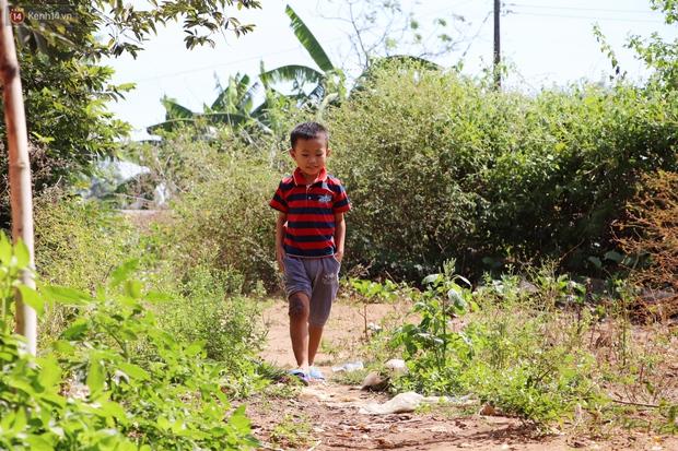 Lời khẩn cầu của bé trai 8 tuổi mắc bệnh lạ, phải cắt bỏ ruột: Mỗi lần chảy máu nó bắn ra ngoài, con sợ lắm… - Ảnh 6.
