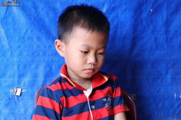 Lời khẩn cầu của bé trai 8 tuổi mắc bệnh lạ, phải cắt bỏ ruột: Mỗi lần chảy máu nó bắn ra ngoài, con sợ lắm… - Ảnh 2.