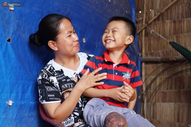 Lời khẩn cầu của bé trai 8 tuổi mắc bệnh lạ, phải cắt bỏ ruột: Mỗi lần chảy máu nó bắn ra ngoài, con sợ lắm… - Ảnh 11.
