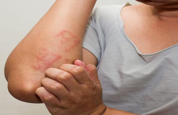 Người phụ nữ làm việc này 2 lần mỗi ngày để giữ ấm vào mùa đông, hậu quả phải gánh chịu là mắc bệnh của người già - Ảnh 2.