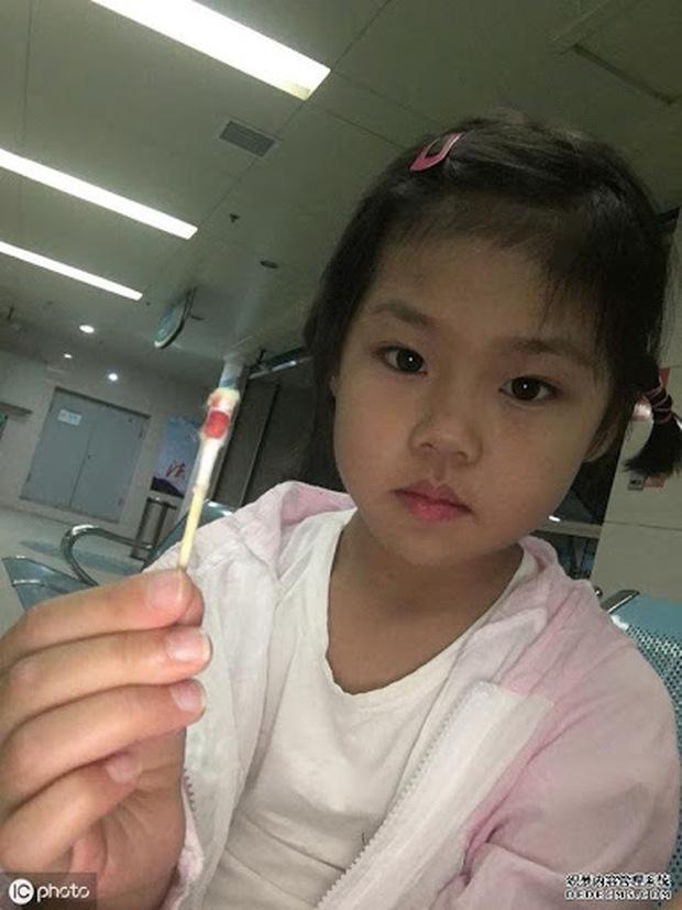 Bé gái 3 tuổi bị dính âm hộ nặng, nguyên nhân xuất phát từ sự vệ sinh sai cách của người mẹ - Ảnh 2.