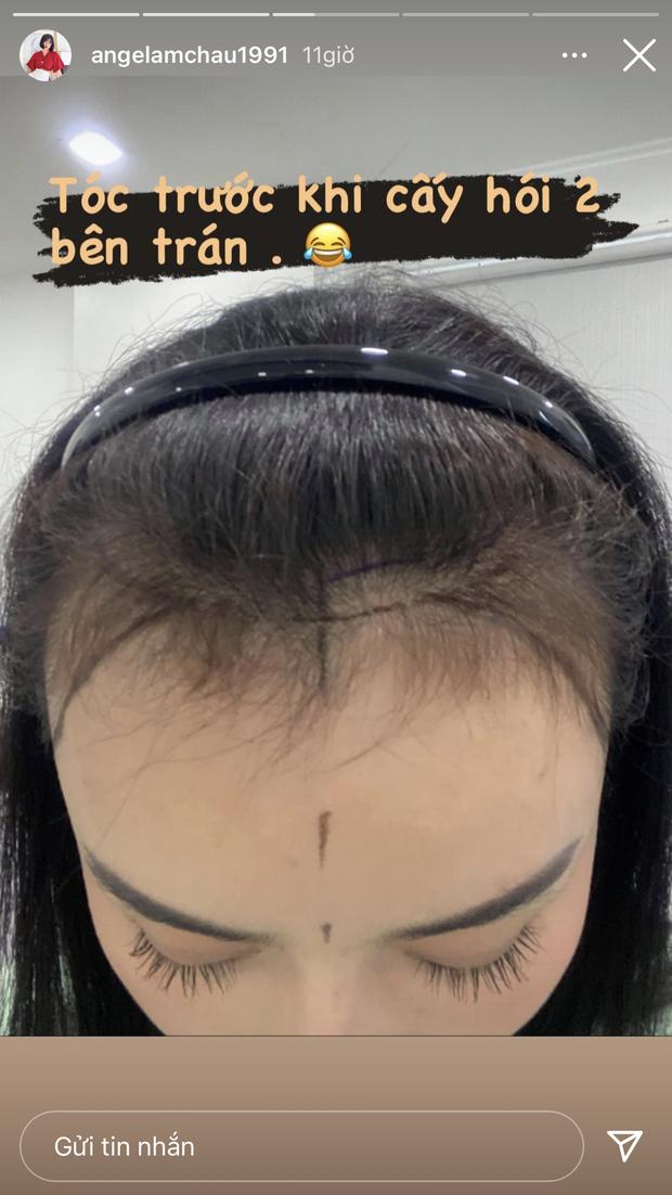 Hiện tượng dao kéo Việt tiết lộ đã cấy 2.000 sợi tóc, nối dài danh sách tu sửa để mãi đẹp - Ảnh 2.