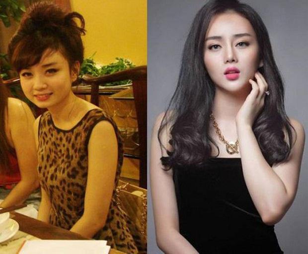 Hiện tượng dao kéo Việt tiết lộ đã cấy 2.000 sợi tóc, nối dài danh sách tu sửa để mãi đẹp - Ảnh 4.