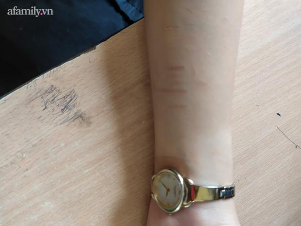 Cảnh báo: Xôn xao tình trạng nhiều học sinh dùng dao lam tự rạch tay chân, có em rạch đến 27 vết, nghi học theo trên Youtube - Ảnh 2.