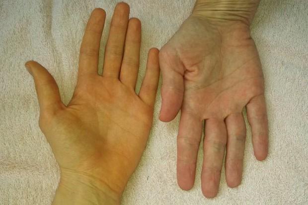 Soi tay chân cũng có thể nhận biết được 5 biểu hiện cảnh báo bạn có nguy cơ mắc ung thư hay không - Ảnh 1.