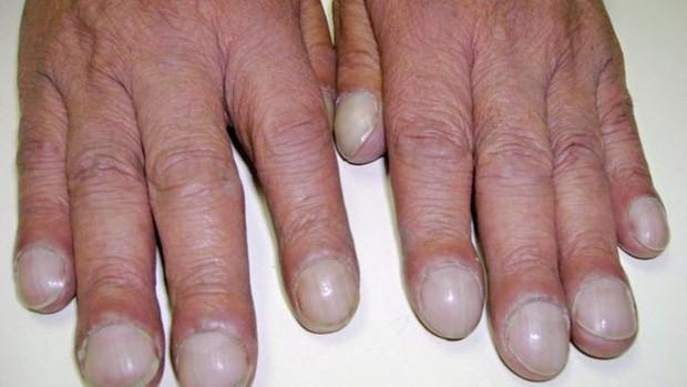 Soi tay chân cũng có thể nhận biết được 5 biểu hiện cảnh báo bạn có nguy cơ mắc ung thư hay không - Ảnh 2.