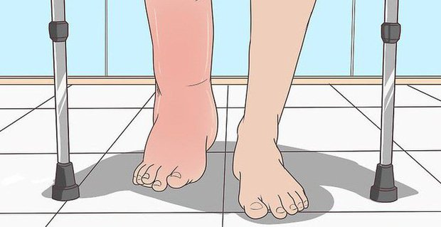 Soi tay chân cũng có thể nhận biết được 5 biểu hiện cảnh báo bạn có nguy cơ mắc ung thư hay không - Ảnh 3.