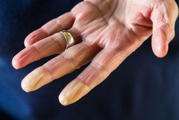 Soi tay chân cũng có thể nhận biết được 5 biểu hiện cảnh báo bạn có nguy cơ mắc ung thư hay không - Ảnh 4.