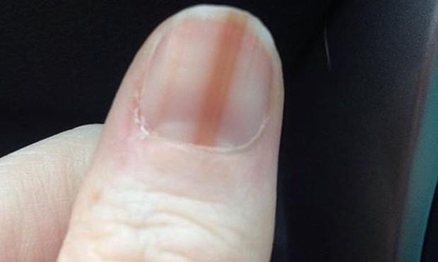 Soi tay chân cũng có thể nhận biết được 5 biểu hiện cảnh báo bạn có nguy cơ mắc ung thư hay không - Ảnh 5.