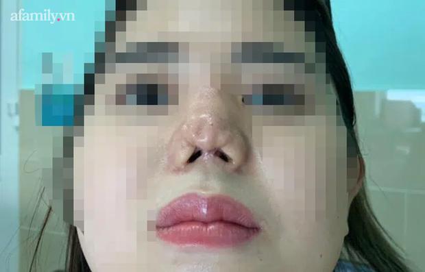 TP.HCM: Cô gái 22 tuổi suy sụp tinh thần, uống 30 viên thuốc tự tử vì bị bác sĩ thẩm mỹ dỏm phá nát mũi - Ảnh 3.