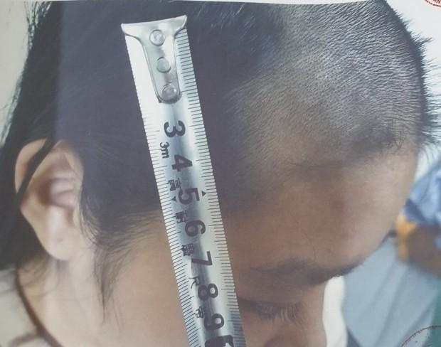 Bắc Ninh: Cha làm sẵn roi đánh đập con đẻ 15 tuổi đến ngất lịm, hành hạ bé suốt thời gian dài sau mỗi lần sử dụng ma tuý - Ảnh 1.