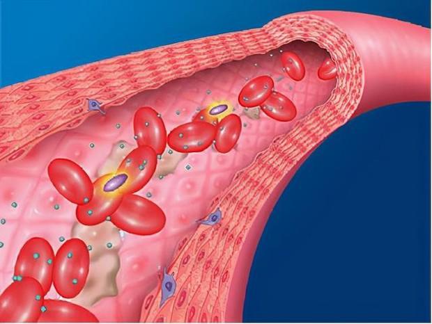 3 dấu hiệu xuất hiện trên cơ thể vào sáng sớm cho thấy bạn có mạch máu yếu, cần khám ngay - Ảnh 1.