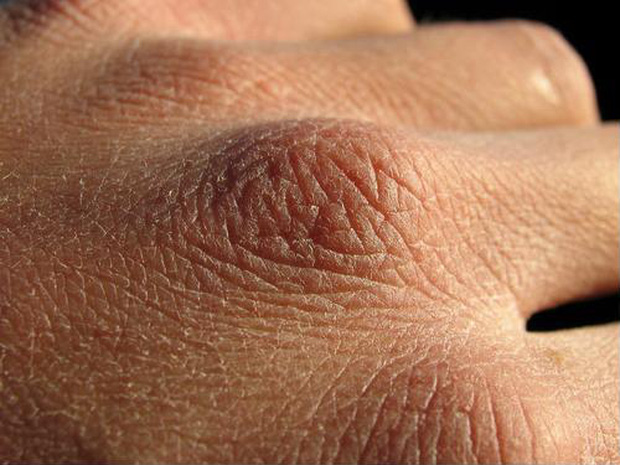 Chuyên gia da liễu tiết lộ 3 bệnh về da thường gặp vào mùa đông, muốn phòng tránh phải làm đủ 10 điều quan trọng - Ảnh 1.