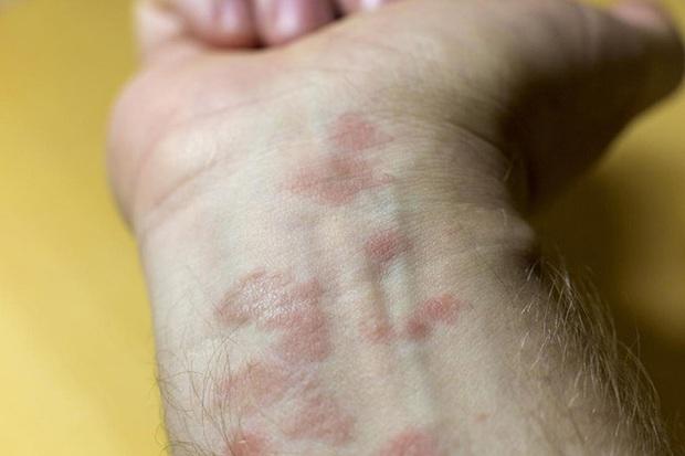 Chuyên gia da liễu tiết lộ 3 bệnh về da thường gặp vào mùa đông, muốn phòng tránh phải làm đủ 10 điều quan trọng - Ảnh 3.
