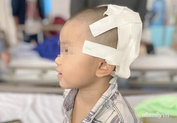 Tai nạn kinh hoàng: Anh lấy xe đạp chở em út quanh xóm rồi bị té, bé trai 2 tuổi lõm sọ não - Ảnh 1.