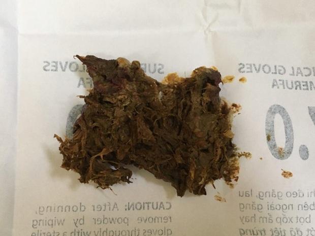 Bé 8 tuổi tắc ruột vì ăn nai khô, bò khô ở cổng trường - Ảnh 1.