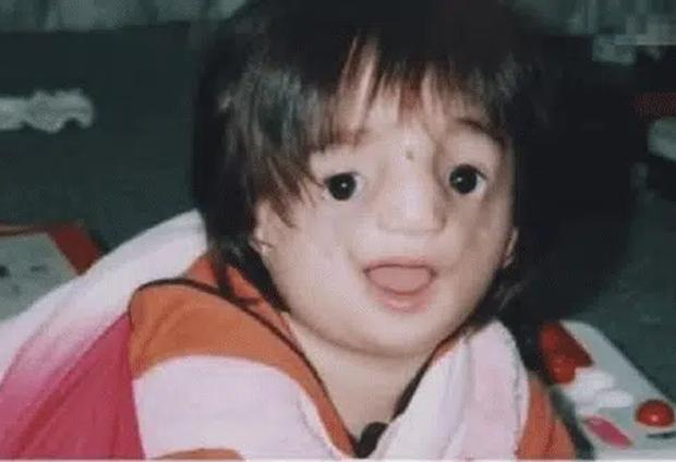 Bé gái sinh ra có gương mặt biến dạng, từng là nạn nhân của bạo lực học đường nhưng cuộc sống hiện tại khiến những ai dè bỉu phải xấu hổ - Ảnh 1.