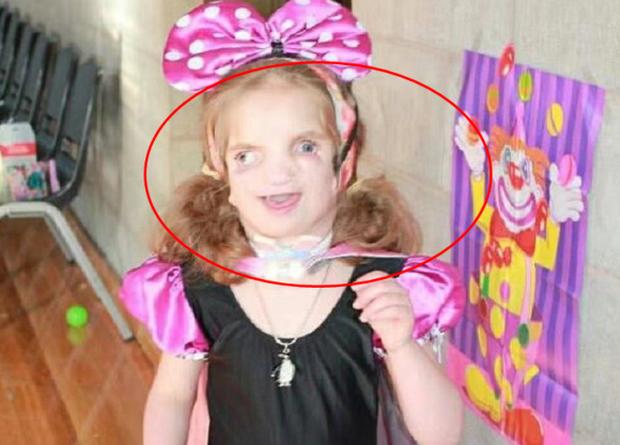 Bé gái sinh ra có gương mặt biến dạng, từng là nạn nhân của bạo lực học đường nhưng cuộc sống hiện tại khiến những ai dè bỉu phải xấu hổ - Ảnh 2.