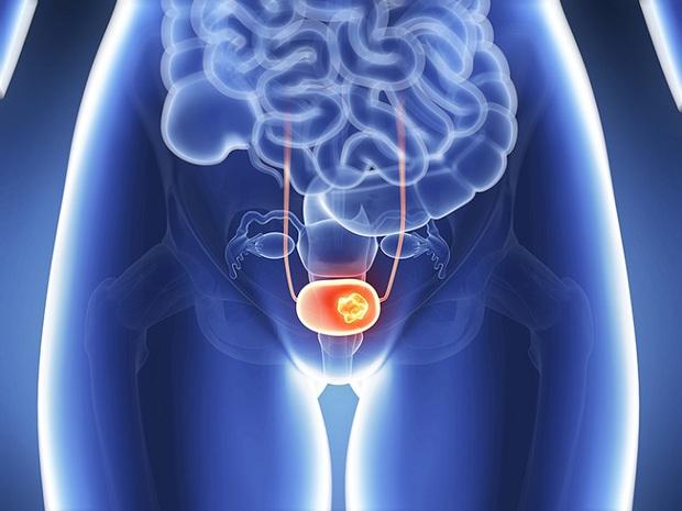 Thường xuyên nhịn tiểu khiến bạn phải đối mặt với nguy cơ gặp 3 vấn đề sức khỏe vô cùng tai hại - Ảnh 3.