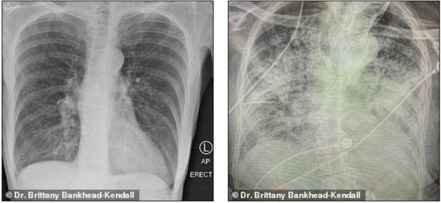 Sốc về mức độ tàn phá hai lá phổi của Covid-19 - Ảnh 1.