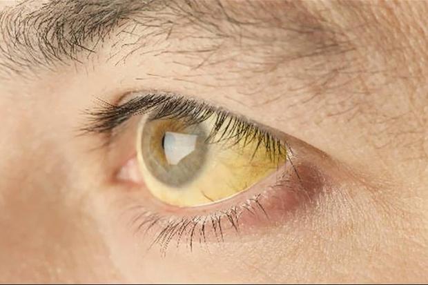 2 dấu hiệu bất thường ở mắt sẽ giúp bạn phán đoán nguy cơ ung thư từ giai đoạn đầu - Ảnh 2.
