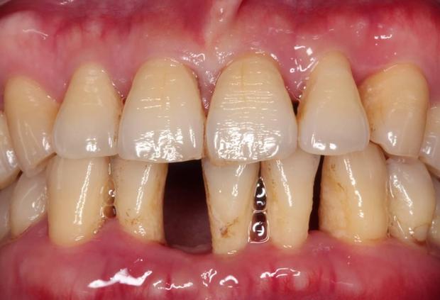 3 hiện tượng bất thường ở vùng răng miệng có thể giúp bạn phán đoán sớm nguy cơ mắc bệnh ung thư gan - Ảnh 3.