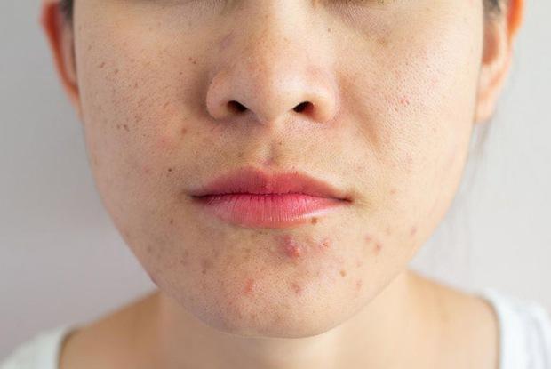Con gái mắc bệnh phụ khoa thường có 3 triệu chứng nổi quanh miệng, số 2 nhiều người dễ gặp phải