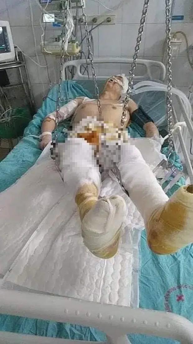Đốt than sưởi ấm, người đàn ông bị bỏng nặng phải cắt cụt 2 chân - Ảnh 1.
