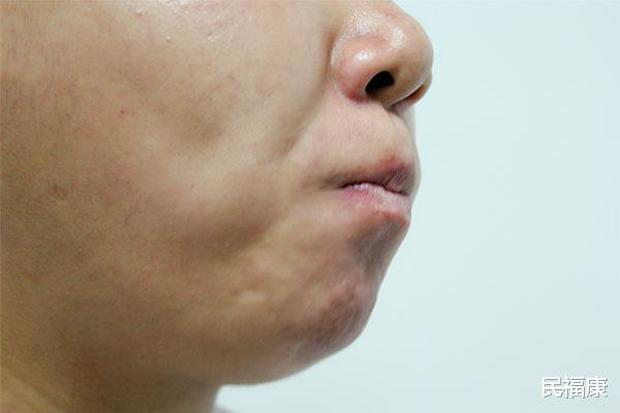 Bỗng thấy miệng xuất hiện 3 điều lạ nghĩa là ung thư đã hình thành, bạn nên đi khám khẩn cấp - Ảnh 2.