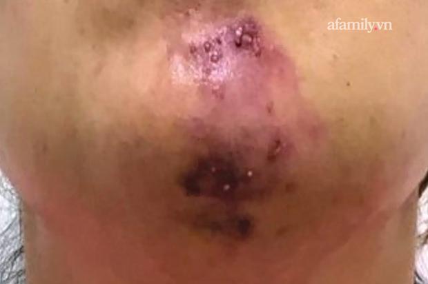 TP.HCM: Tiêm filler nâng cằm tại spa rởm, cô gái trẻ chịu muôn vàn đau đớn, mặt biến dạng, đón Tết cùng vết sẹo khủng - Ảnh 2.