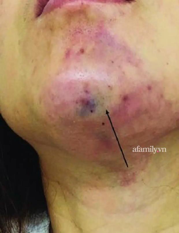 TP.HCM: Tiêm filler nâng cằm tại spa rởm, cô gái trẻ chịu muôn vàn đau đớn, mặt biến dạng, đón Tết cùng vết sẹo khủng - Ảnh 3.