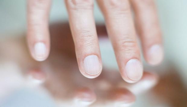 2 thay đổi xuất hiện trên móng tay ngầm cảnh báo nguy cơ mắc bệnh gan rất cao, bạn nên cảnh giác ngay! - Ảnh 1.