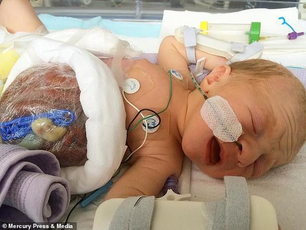 Bé trai sinh ra với nội tạng nằm ngoài cơ thể, đến mẹ đẻ cũng không dám nhìn thẳng gây thương cảm một thời giờ ra sao? - Ảnh 2.