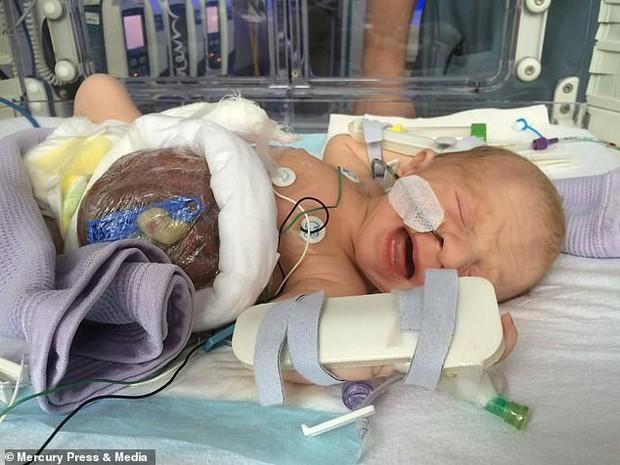 Bé trai sinh ra với nội tạng nằm ngoài cơ thể, đến mẹ đẻ cũng không dám nhìn thẳng gây thương cảm một thời giờ ra sao? - Ảnh 1.