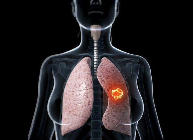 5 loại ung thư có tính di truyền cao, trong gia đình có người bị thì nên thường xuyên khám sức khỏe để xử lý sớm nếu có bệnh - Ảnh 4.