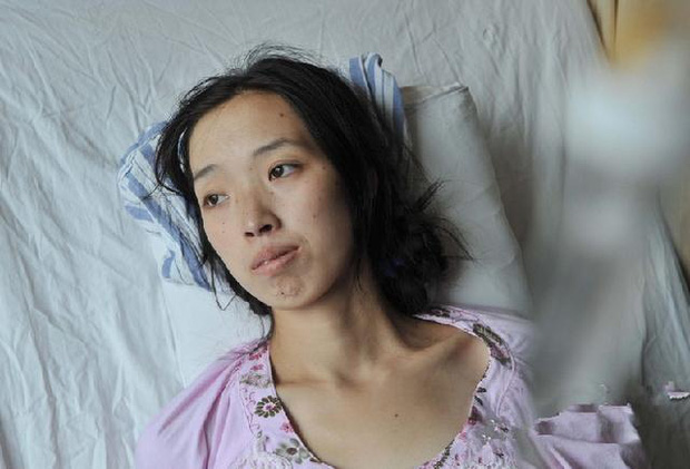 Người phụ nữ 33 tuổi nhận chẩn đoán ung thư đại trực tràng giai đoạn cuối vì 2 thói quen xấu nhiều người vẫn mắc - Ảnh 1.