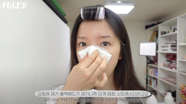 """Nặn mụn """"thô bạo"""" là sai cực kỳ, beauty blogger Hàn mách cách lấy mụn đầu đen với Vaseline siêu nhẹ nhàng và không hại da - Ảnh 5."""