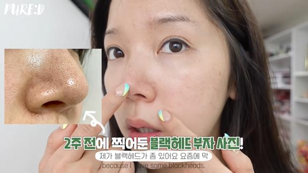 """Nặn mụn """"thô bạo"""" là sai cực kỳ, beauty blogger Hàn mách cách lấy mụn đầu đen với Vaseline siêu nhẹ nhàng và không hại da - Ảnh 11."""
