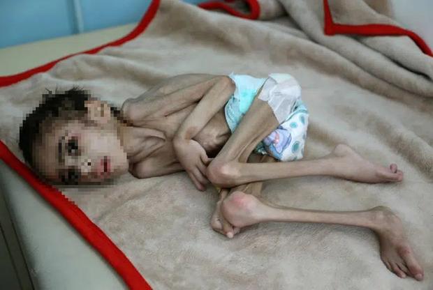 Bức ảnh cậu bé 7 tuổi nặng chưa đầy 7kg gầy giơ xương nằm co ro trên giường gây sốc, câu chuyện phía sau càng khiến nhiều người xót xa - Ảnh 2.