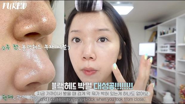 """Nặn mụn """"thô bạo"""" là sai cực kỳ, beauty blogger Hàn mách cách lấy mụn đầu đen với Vaseline siêu nhẹ nhàng và không hại da - Ảnh 1."""