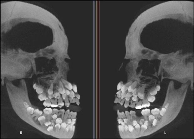 """Những hình chụp X quang kỳ lạ nhưng thú vị sau đây sẽ cho bạn cơ hội nhìn mọi vật từ """" tận sâu bên trong"""", thử xem bạn nhìn ra là gì không nhé? - Ảnh 12."""